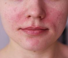 Дерматит на лице: причины и лечение