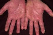 Сухая экзема на руках – чем лечить и какие причины