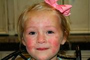 Пеленочный дерматит и его лечение