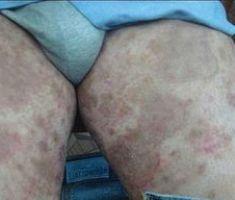 Паховый дерматомикоз: причины, симптомы, медикаментозное лечение