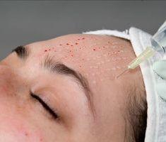 Мезотерапия при акне: возможности современной косметологии