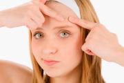 Лечение угрей на лице в домашних условиях