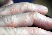 Какие существуют виды экземы и как ее лечить