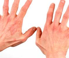Псориаз на руках причины и лечение