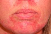 Стероидный дерматит