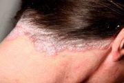 Мази от себорейного дерматита: список лучших
