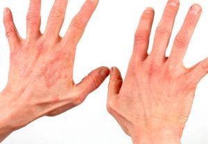 Псориаз на руках