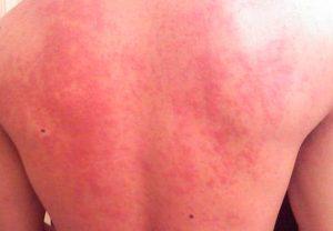 Вид солнечного дерматита на спине
