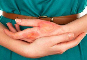 Вид кожного дерматита на руках