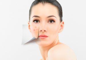 Причины и методы борьбы с псориазом