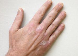 симптоматика псориаза