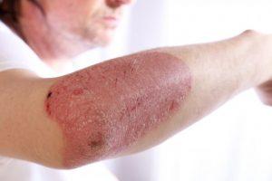 Причины заболевания псориазом
