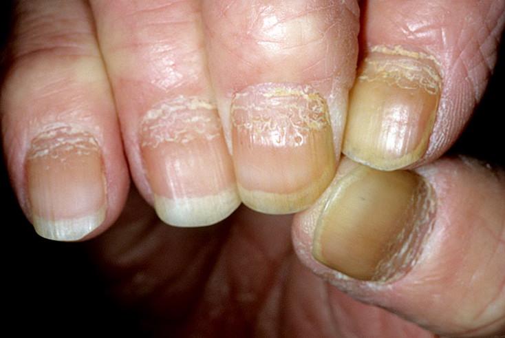 Псориаз подошв и ладоней. Причины формы симптомы и лечение.