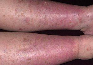 Варикозный дерматит на ногах