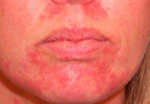 Стероидный дерматит на лице