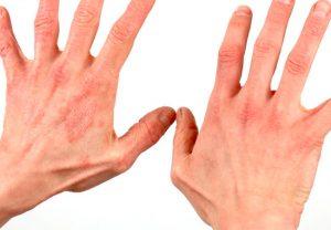 Контактный аллергический дерматит на руках