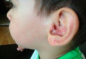 правила по удалению угрей в ухе ребенка