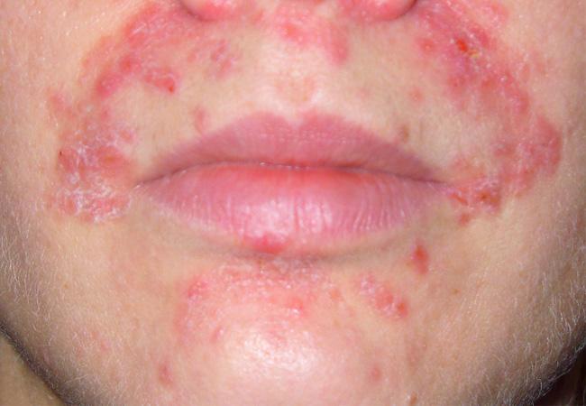 Псориаз на лице симптомы и лечение