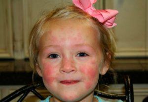 Дерматит у ребенка на лице