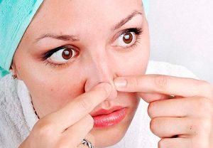 Как избавиться от угрей на носу?