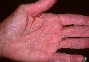 Дерматит эксфолиативный на руке
