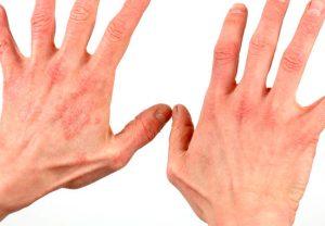 Блошиный дерматит на руках