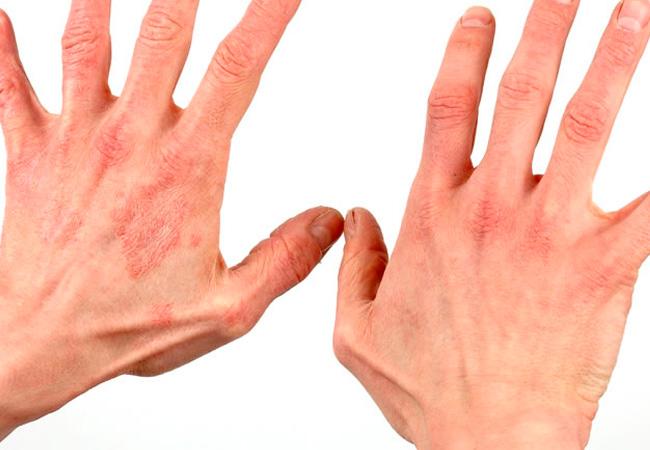дерматит у человека фото