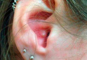 обнаружились угри в ушах