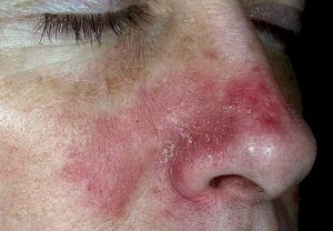 Себорейный дерматит на носу