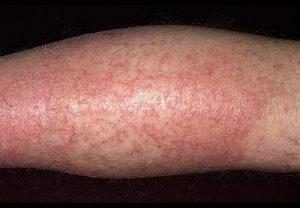 Экзематозный дерматит на ноге