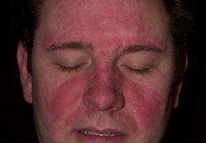 Методы лечения дерматита на лице