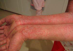 Лечение в домашних условиях экземы на руках