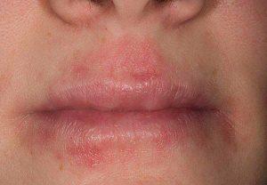 Дерматит атипичный возле губ