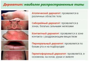 Виды и признаки дерматита