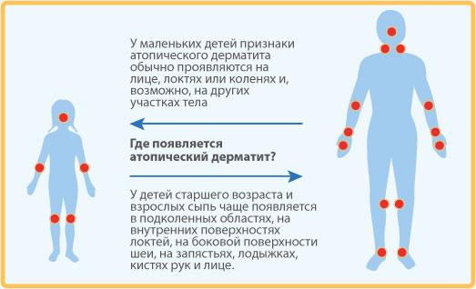 где появляетс атопический дерматит