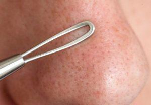 Удаление угрей на носу