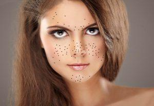Как правильно делать маску от угрей?