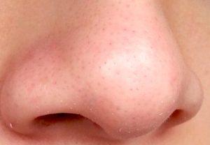 Предотвращение угрей на носу