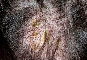 Лечение в домашних условиях, кожа головы