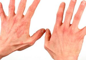 Проблемы с руками: сухая экзема