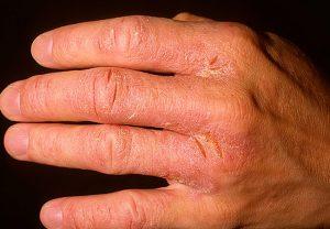 Как лечить экзему на руке?