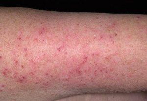 Микробная экзема на ногах лечение