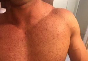 Cтероидные угри на плечах и груди