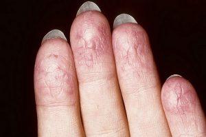 Экзема на пальцах рук