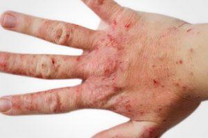 Проявления атопического дерматита
