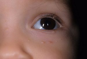 Бородавки на лице у детей