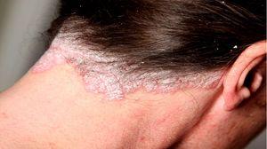 Сухой себорейный дерматит на лице лечение мази thumbnail