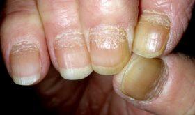 Псориаз ногтей и его лечение