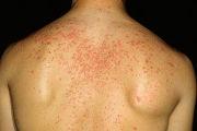 Стероидные угри: причины появления и методы лечения