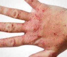 Мази при атопическом дерматите для детей и взрослых